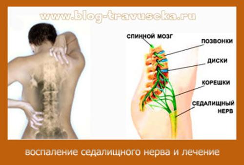 Воспаление нерва в позвоночнике и тазобедренном суставе болят все суставы 5 мес после родов