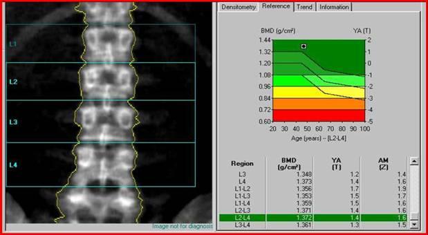 Как проводят денситометрию костей и позвоночника?