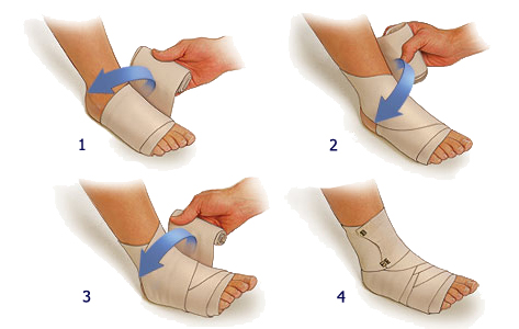 Эластичный бинт на голеностоп: как правильно бинтовать ногу при растяжении, фото