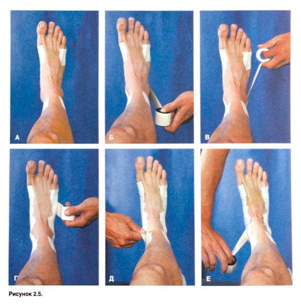 Как эластичным бинтом перебинтовать голеностоп?