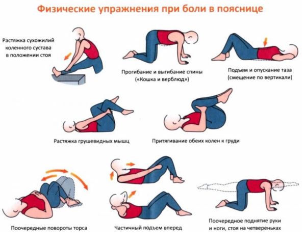 Гимнастика при поясничном остеохондрозе комплекс упражнений