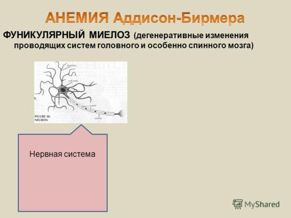 Особенности проявления фуникулярного миелоза и его лечение. Фуникулярный миелоз