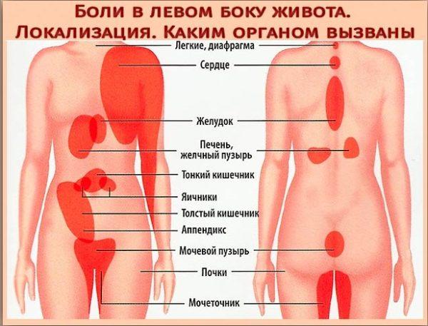 Слева боль в пояснице внизу спины с левой стороны