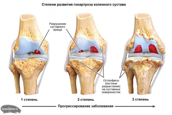 Полное описание гонартроза 1 степени коленного сустава: симптомы и лечение