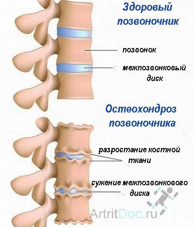 Грудного остеохондроза