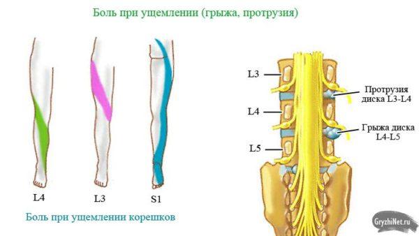 Грыжа диска L5 S1: причины, симптомы, лечение (фото)