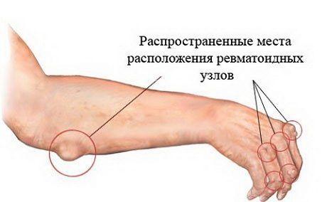 Характеристика ревматизма суставов причины симптомы диагностика и методы лечения