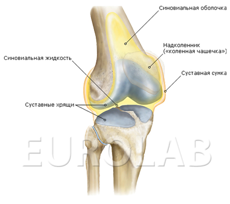Хондроматоз коленного сустава причины - вылечить, лекарства, обострение, что это такое