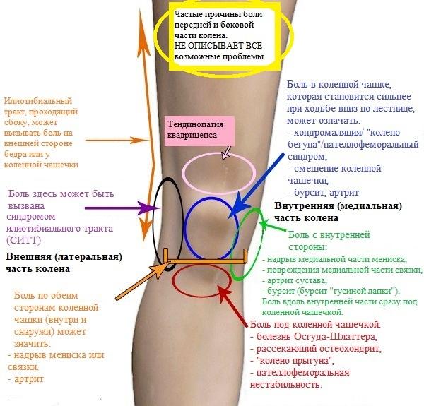 К какому врачу обращаться при болях в суставах рук или ног
