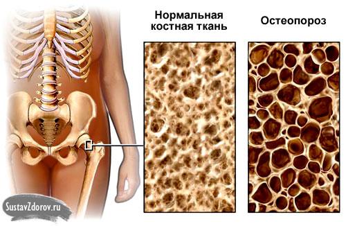 Остеопороз костей симптомы и лечение