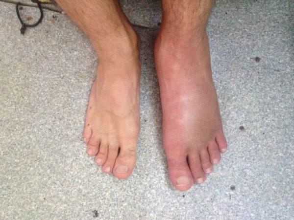Опухоль на ноге после ушиба лечение