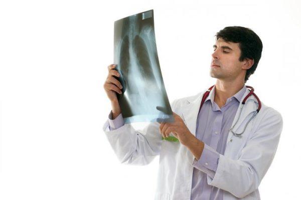 Двухсторонний перелом ребер при падении. Возможно ли лечение перелома ребер в домашних условиях