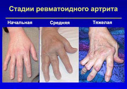 Артропатия суставов кистей рук лечение мрт коленного сустава в коломне