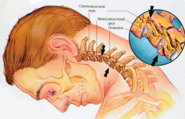 Жжение глаз при шейном остеохондрозе