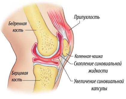 обострение артроза коленного сустава симптомы