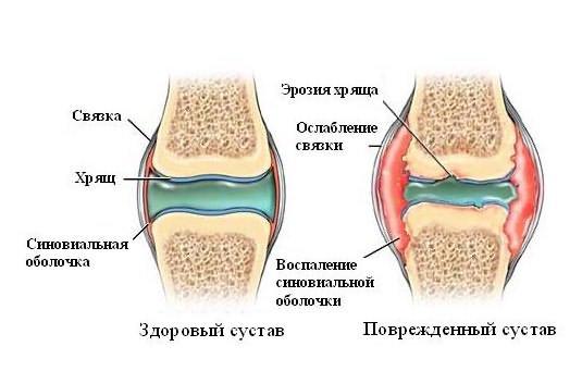 Сустав синовит как лечит суставы лечение дома