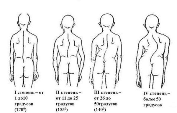 Сколиоз 1 степени лечение в домашних условиях Лечение сколиоза