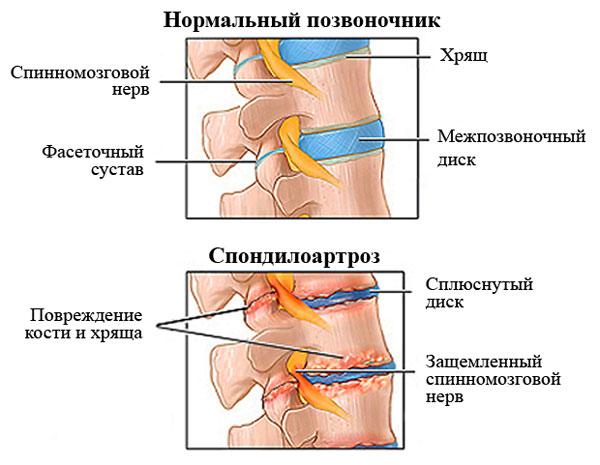 Какие лекарства назначают для лечения спондилоартроза