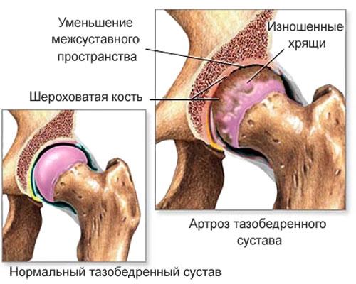 Чем лечить тазобедренные суставы в домашних условиях