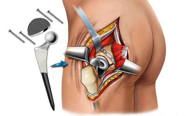Тазобедренный сустав - симптомы, болезни, лечение