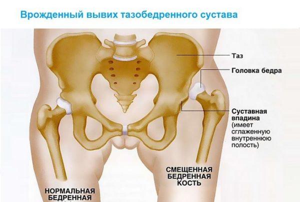 Ревматизм суставы тазобедренные лечение коленного сустава народными средствами
