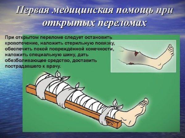 Как наложить шину при переломе голени