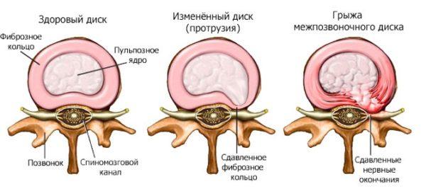 Дорсальная протрузия шейного отдела позвоночника