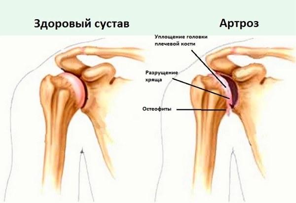 Продукты восстанавливающие разрушенные суставы микро движение суставов