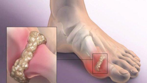 Боль в суставах ног - причины, характер, лечение