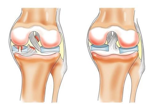 Суставы воспаление лекарства суставы хрустят нехватает