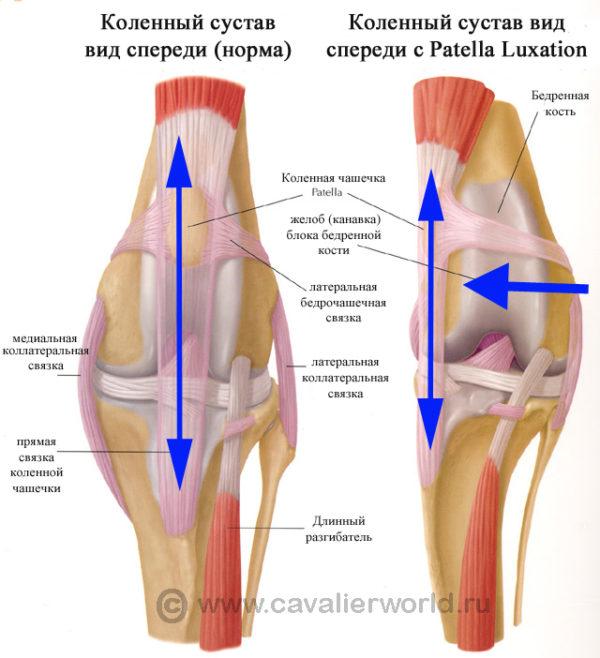 Как забинтовать коленый сустав без чашечки гипермобильность тазобедренных суставов у младенца