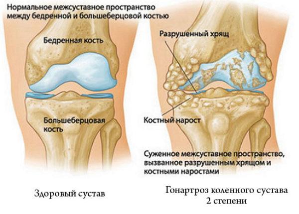 Современные методы лечения гонартроза - диагностика и лечение, причины, способы, средства