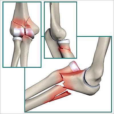 Слабый локтевой сустав у детей если болят суставы и опухают коленки