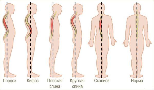 Лордоз и кифоз позвоночника причины и методы лечения