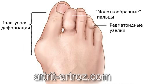 Захватывает нижние фаланговые суставы среднего пальца появляются трудности сгибании идут физические упражнения при коксоартрозе тазобедренного сустава