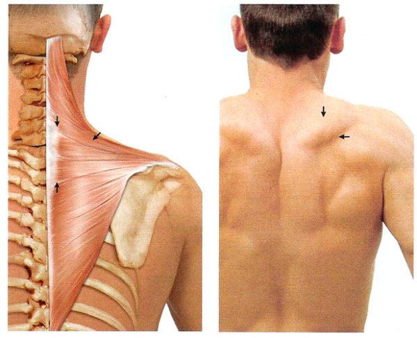 Миозит грудной клетки симптомы – клиника Омега Киев