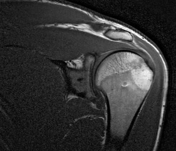 МРТ плечевого сустава магнитно-резонансная томография плеча что покажет
