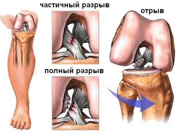 Травма связок коленного сустава симптомы