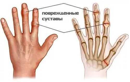 Болят мелкие суставы кистей рук