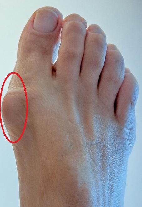Как убрать наросты на больших пальцах ног сбоку