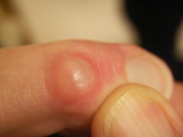 Наросты на суставах пальцах ног повреждение суставной капсулы у лабрадора