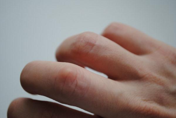Подкожные наросты на суставах пальцев рук артроз пятого плюснефалангового сустава стопы