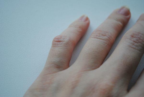 Нарост на указательном пальце руки