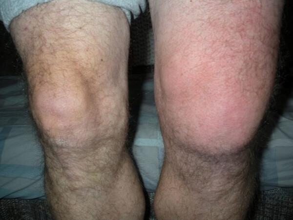Опухоли коленного сустава клиника тренировки по ходьбе тазобедренного сустава