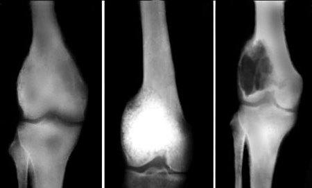 Опухоль кости в коленном суставе отек пастозность над голеностопном суставе