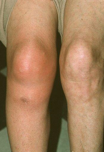 Опухоль в области коленного сустава болит локтевой сустав с внутренней стороны