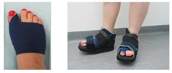 Ортопедическая обувь при вальгусной деформации для детей виды как правильно выбрать обувку