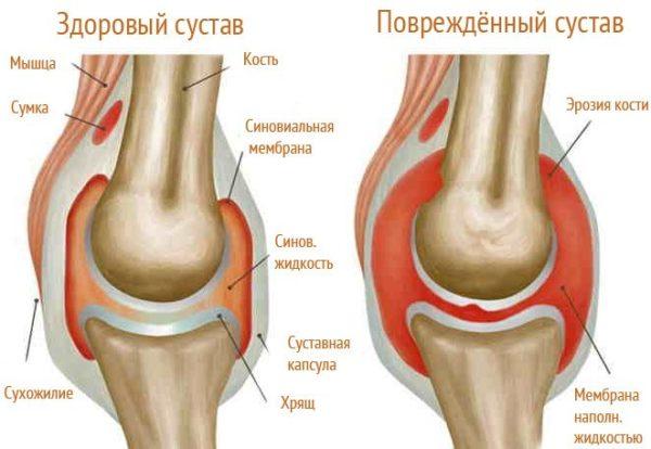 Диагностики туберкулёза травмах коленного сустава обращайтесь врачу выполняйте рекомендац платные операции по замене тазобедренного сустава барнаул