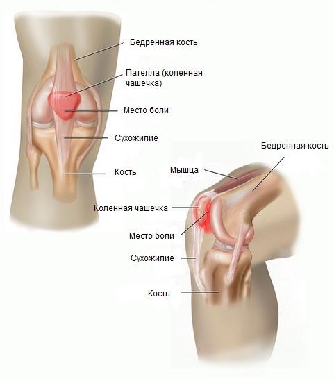 Пателлофеморальный артроз или артроз пателлофеморального сустава