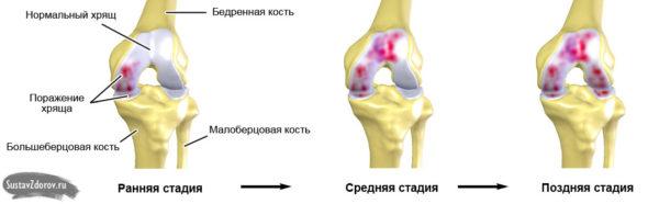 Как убрать боль в коленном суставе при артрозе 3 степени лекарства для хрящей и суставов